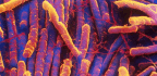 C. Diff Infections Are Falling, Thanks To Better Cleaning And Fewer Antibiotics