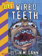 Wired Teeth