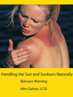 Handling the Sun and Sunburn Naturally