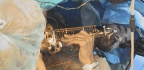 This Music Teacher Played His Saxophone While In Brain Surgery