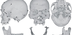 We Owe a Bit of Our Skull Shape to Cheese