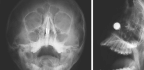 When A Boy Sticks Magnets Up His Nose, Doctors Have To Get Ingenious
