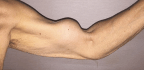 Pop-Ow! 'Popeye' Deformity Can Be A Painful Armful