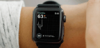 Clinical Trial Puts Apple Watch's Heart Monitoring Prowess to the Test