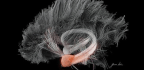 Electrical Stimulation to Amygdala Can Boost Memory