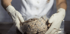 This May Be the First New Alzheimer's Drug in Years