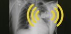 My Pacemaker Is Tracking Me From Inside My Body