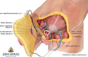 penis de organe