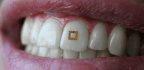 This Tiny Sensor on Tooth Can Reveal What You Eat