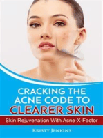 Cracking the Acne Code to Clearer Skin