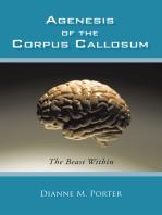 Agenesis of the Corpus Callosum