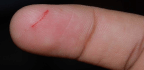 Why Do Paper Cuts Hurt So Much?
