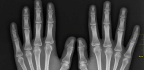 Scientists Are Putting The X Factor Back In X-rays