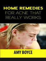 Home Remedies for Acne That Really Works