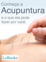 Conheça a acupuntura e o que ela pode fazer por você