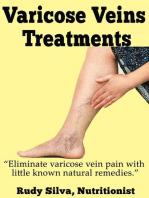 Varicose Vein Treatments
