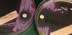 Scientists Spy On Superbugs To See How They Outsmart Our Antibiotics
