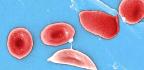 Could CRISPR Treat Sickle Cell Disease?