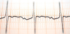 Map Reveals Proteins In Heart's Natural Pacemaker