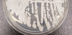 Everyone Agrees This Superbug Is A Threat. Few Are Willing To Fund Research To Stop It