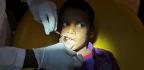 Why a 7-Year-Old Had 547 Teeth