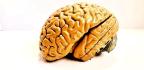 Brain MRIs May Reveal Psychotic Disorder Risk