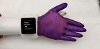 'E-glove' Gives Prosthetic Hands Human Touch And Warmth