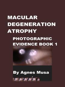 Macular Degeneration Atrophy, Photographic Evidence Book 1